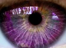 oeil-syndrome-alexandria_thumbnail